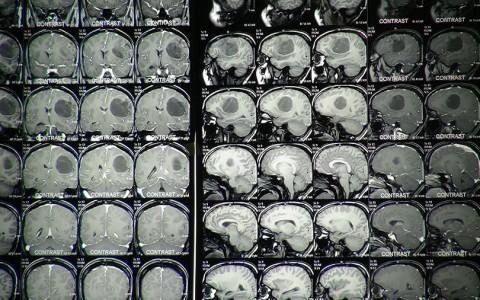عملية استئصال ورم من دماغ