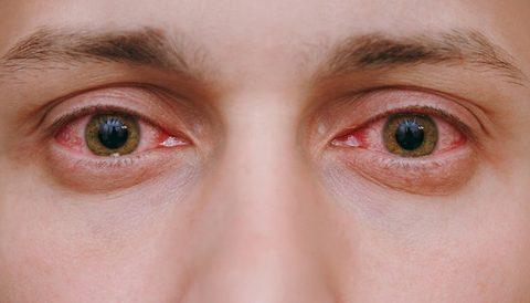 مرض الرمد الربيعي، أسبابُهُ، أعراضُهُ، علاجُه