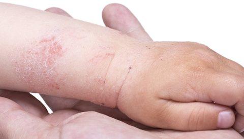 علاج الحروق للأطفال: نصائح وإرشادات مهمة